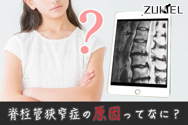 脊柱管狭窄症 原因