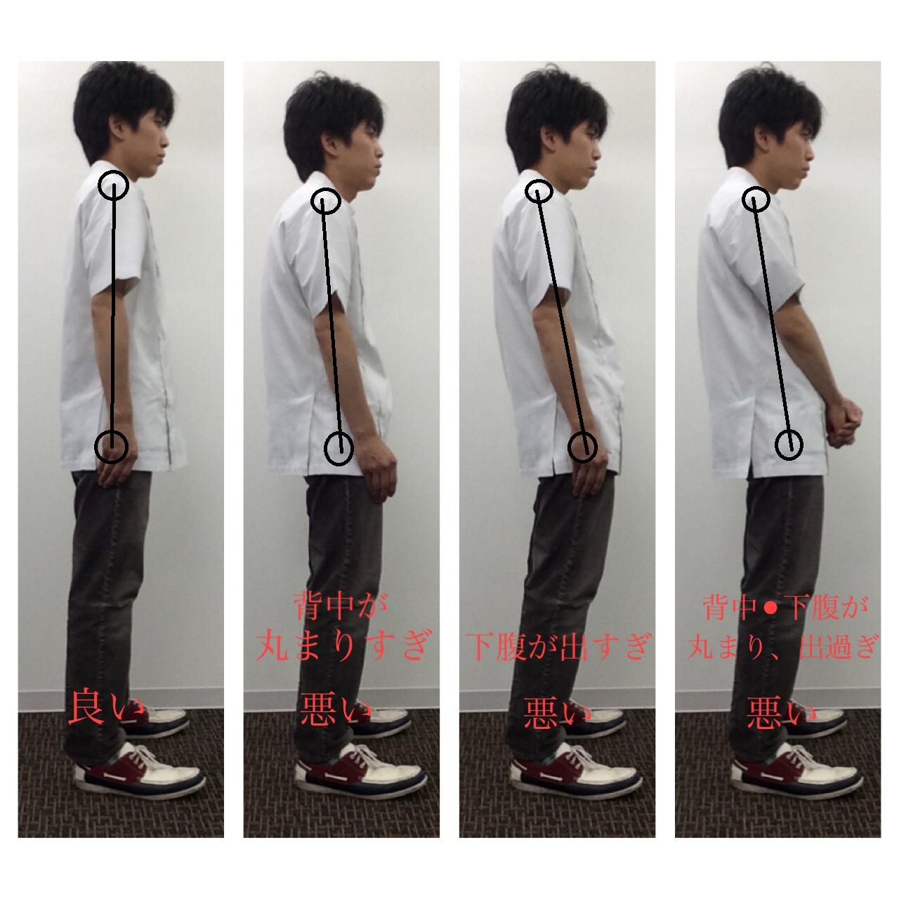 立位の姿勢状態
